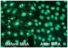 MYCOPLASMA REMOVAL AGENT, 5 mL