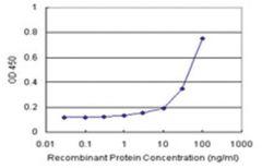 anti-FBXO6 Matched Antibody Pair, Abnova