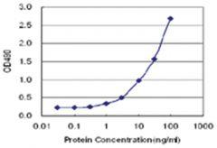 anti-LRG1 Matched Antibody Pair, Abnova