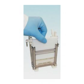 Expedeon Accessories and Replacement Parts for Dual Run and Blot System